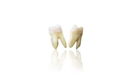 Tártaro-nos-Dentes