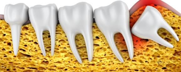 Ilustração-Dentes-do-Siso