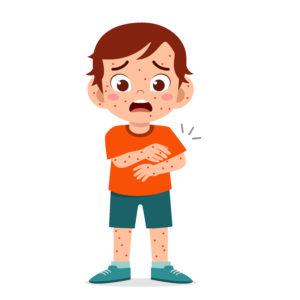 ilustração-de-garoto-com-sarampo
