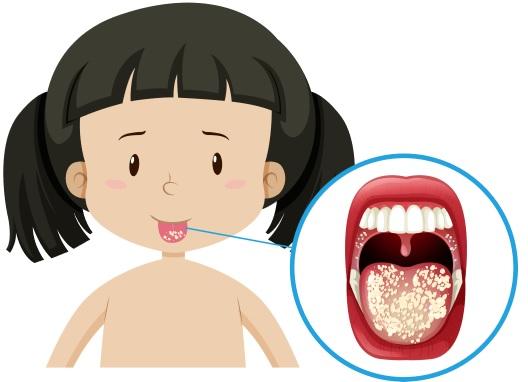 Candidíase-Oral