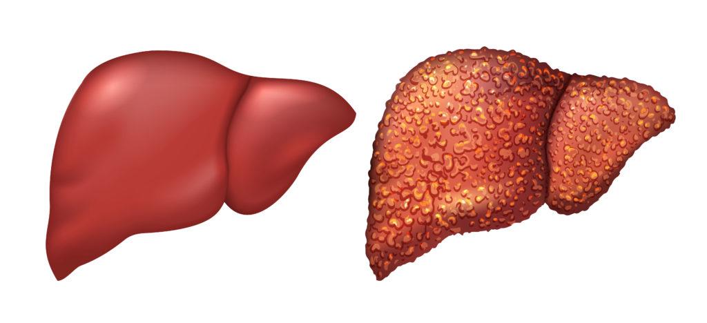Hepatite-Fígado-Saudável-Fígado-Doente